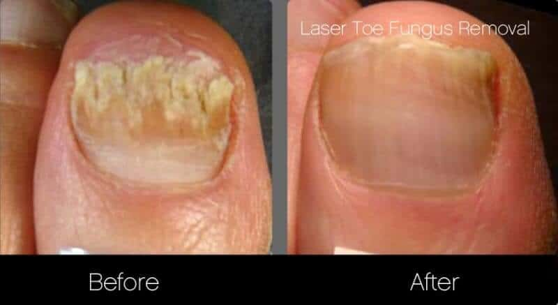 Toe Fungus Removal - Patient Before and After Gallery – Photo 1