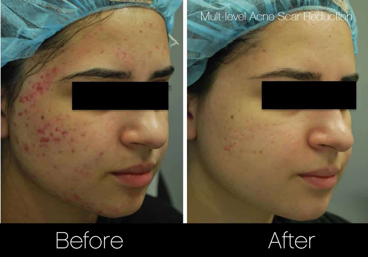Acne Scar Treatments - Before and After Gallery – Photo 1