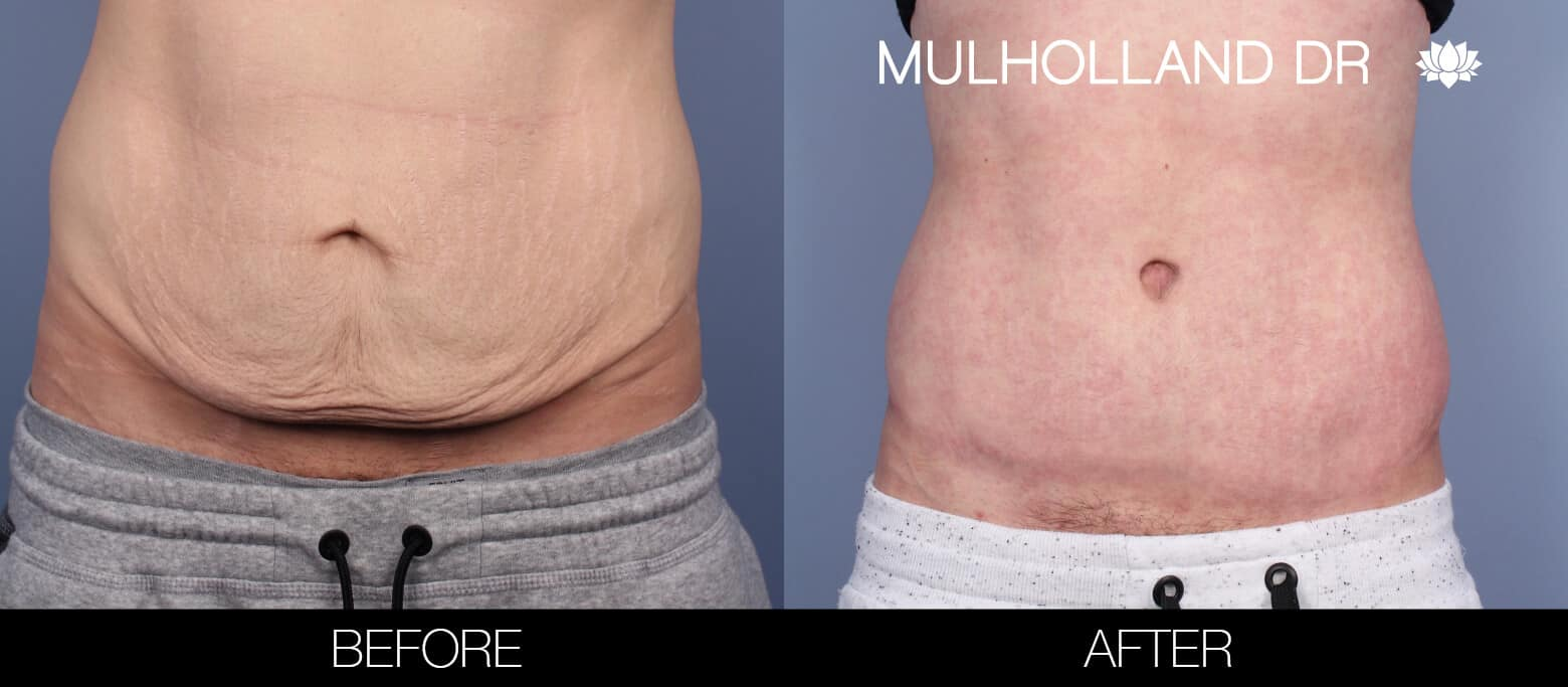 Male Tummy Tuck (Belt Lipectomy) - Before and After Gallery – Photo 1