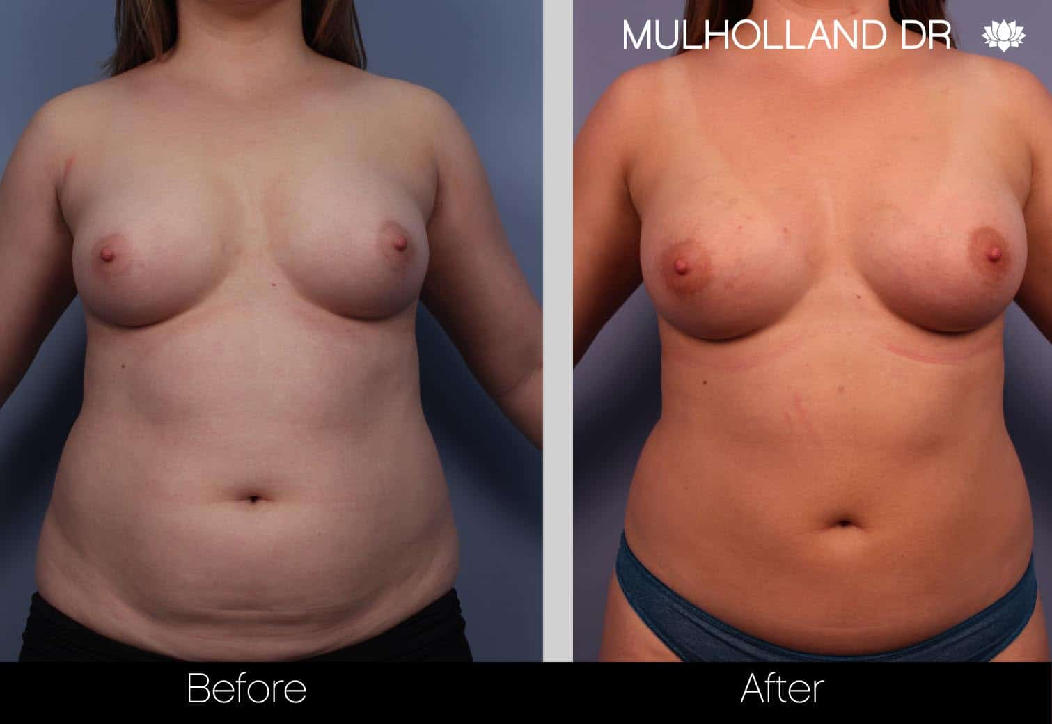Fat Grafting Breast Augmentation - Before and After Gallery – Photo 1