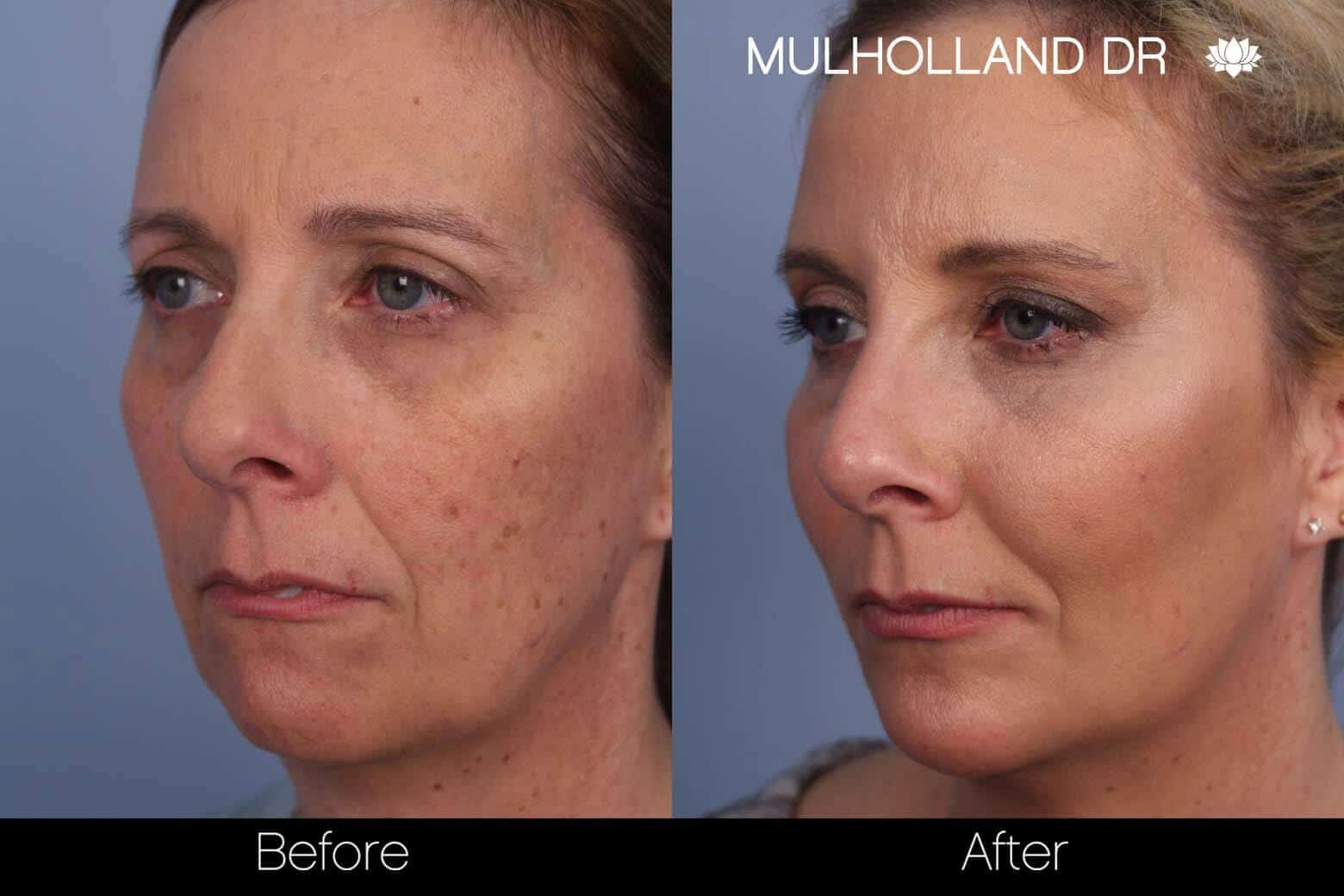 Microdermabrasion - Before and After Gallery – Photo 3