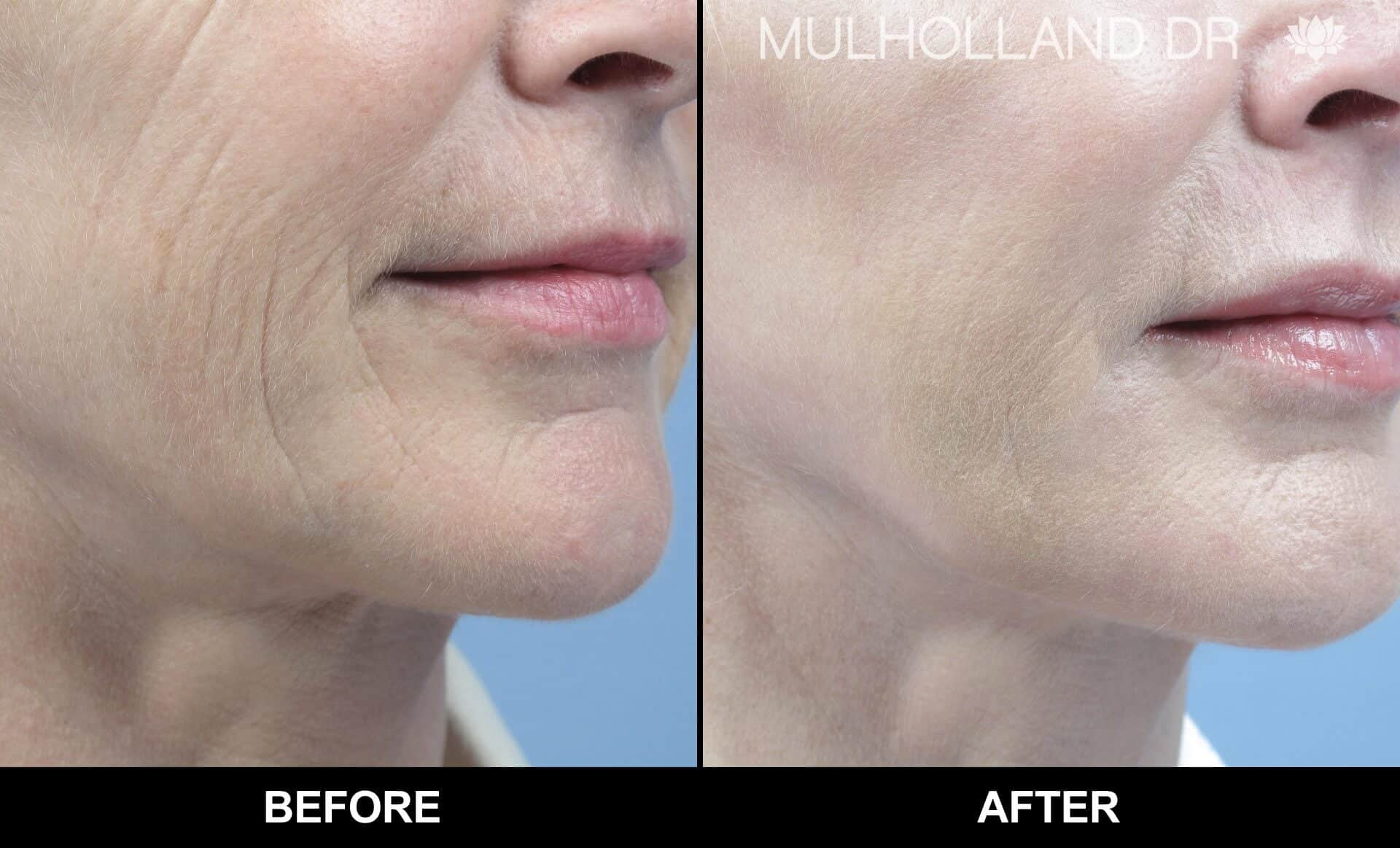 Microdermabrasion - Before and After Gallery – Photo 11