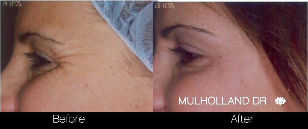 Botox Before and After Gallery - Photo 25