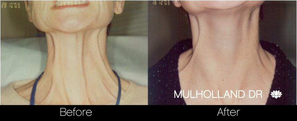 Botox Before and After Gallery – Photo 28