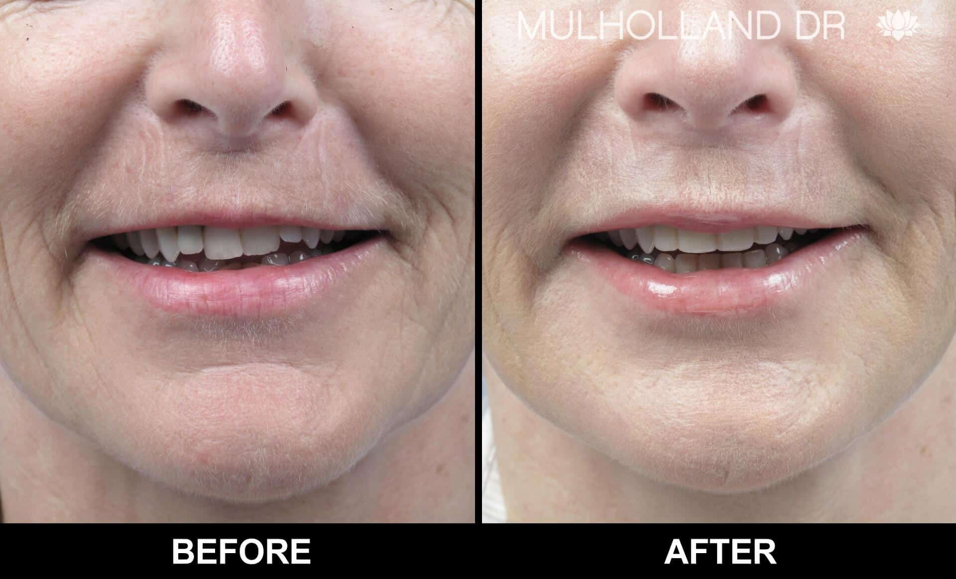 Microdermabrasion - Before and After Gallery – Photo 17