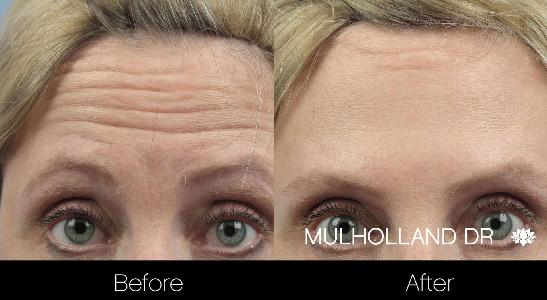 Botox Injectable - Before and After Gallery – Photo 2