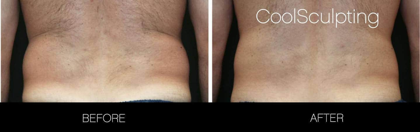 CoolSculpting - Before and After Gallery – Photo 2