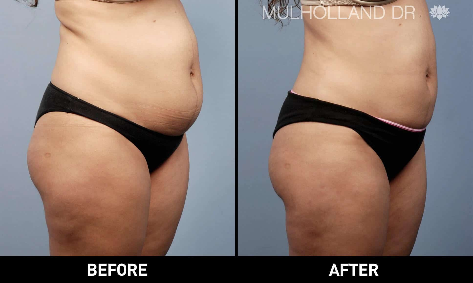 Vaser Lipo - Before and After Gallery – Photo 2