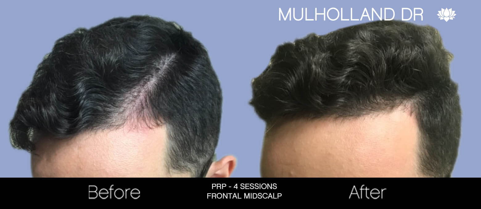 Non-Surgical Hair Restoration - Patient Before and After Gallery – Photo 2