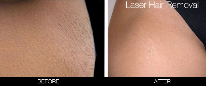 Bikini & Brazilian Laser Hair Removal - Patient Before and After Gallery – Photo 2