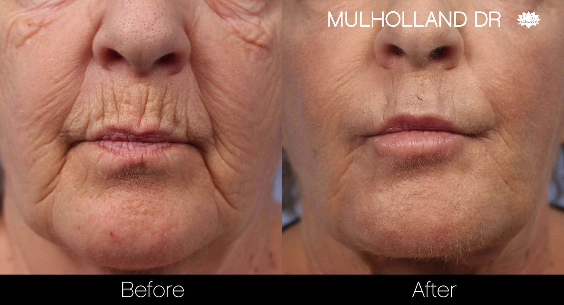 Facial Resurfacing and Rejuvenation - Before and After Gallery – Photo 2