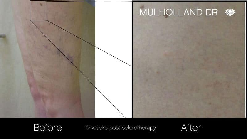 Leg Vein Reduction - Patient Before and After Gallery – Photo 2