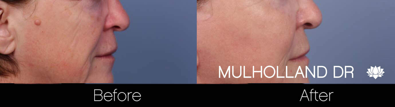 Mole Removal - Patient Before and After Gallery – Photo 2