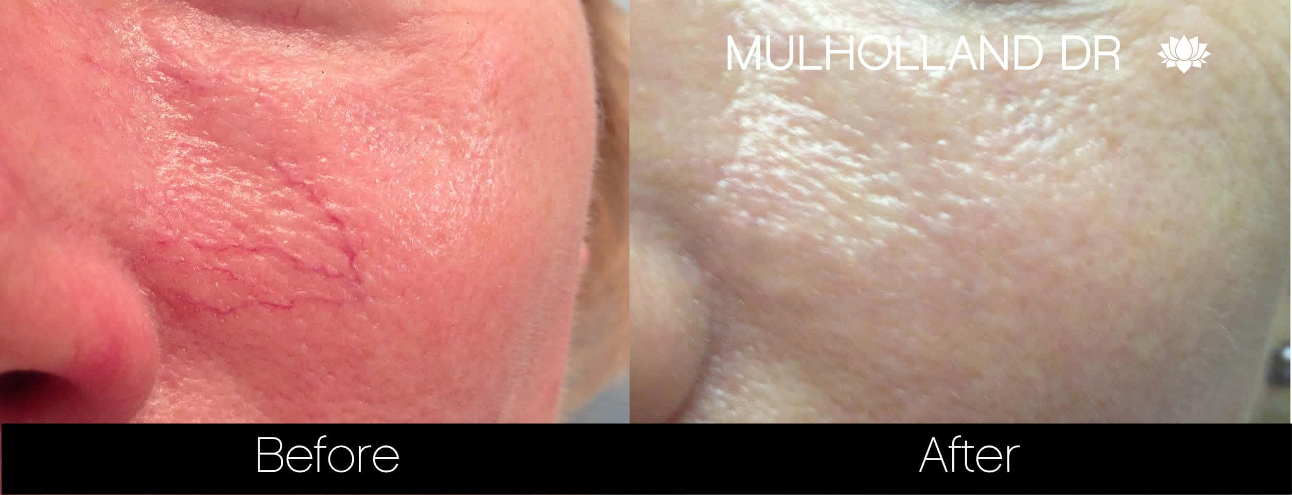 Rosacea Treatment - Patient Before and After Gallery – Photo 3