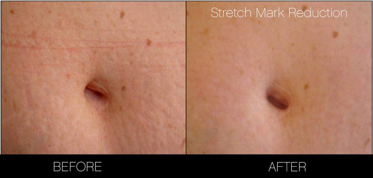 Laser Stretch Mark Removal - Patient Before and After Gallery – Photo 4