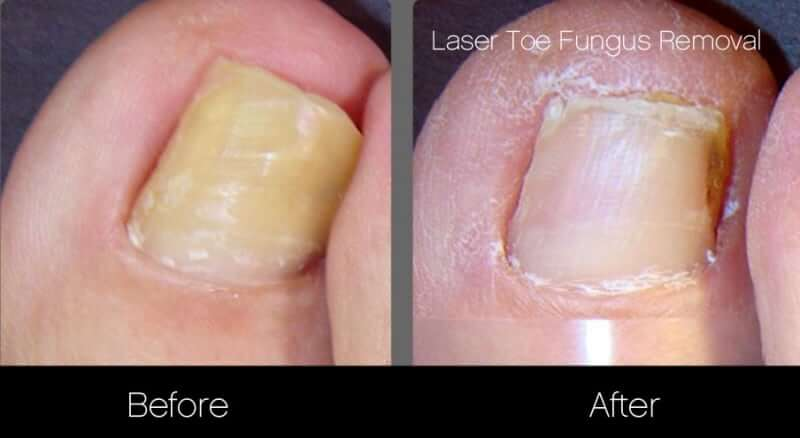 Toe Fungus Removal - Patient Before and After Gallery – Photo 2