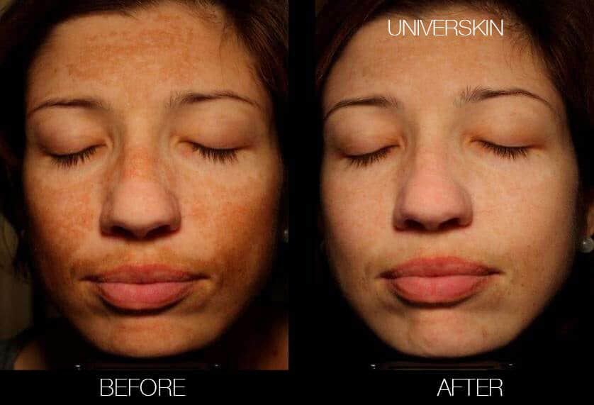 Universkin - Before and After Gallery – Photo 3