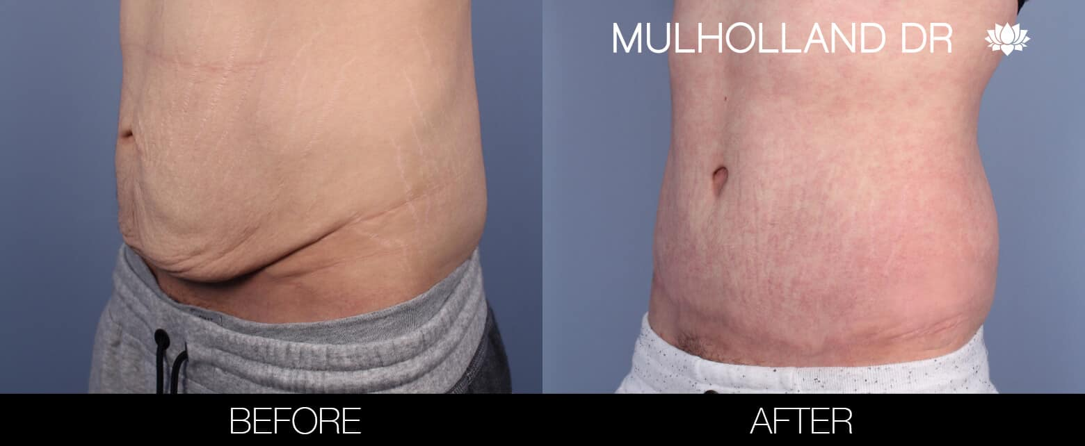Male Tummy Tuck (Belt Lipectomy) - Before and After Gallery – Photo 2