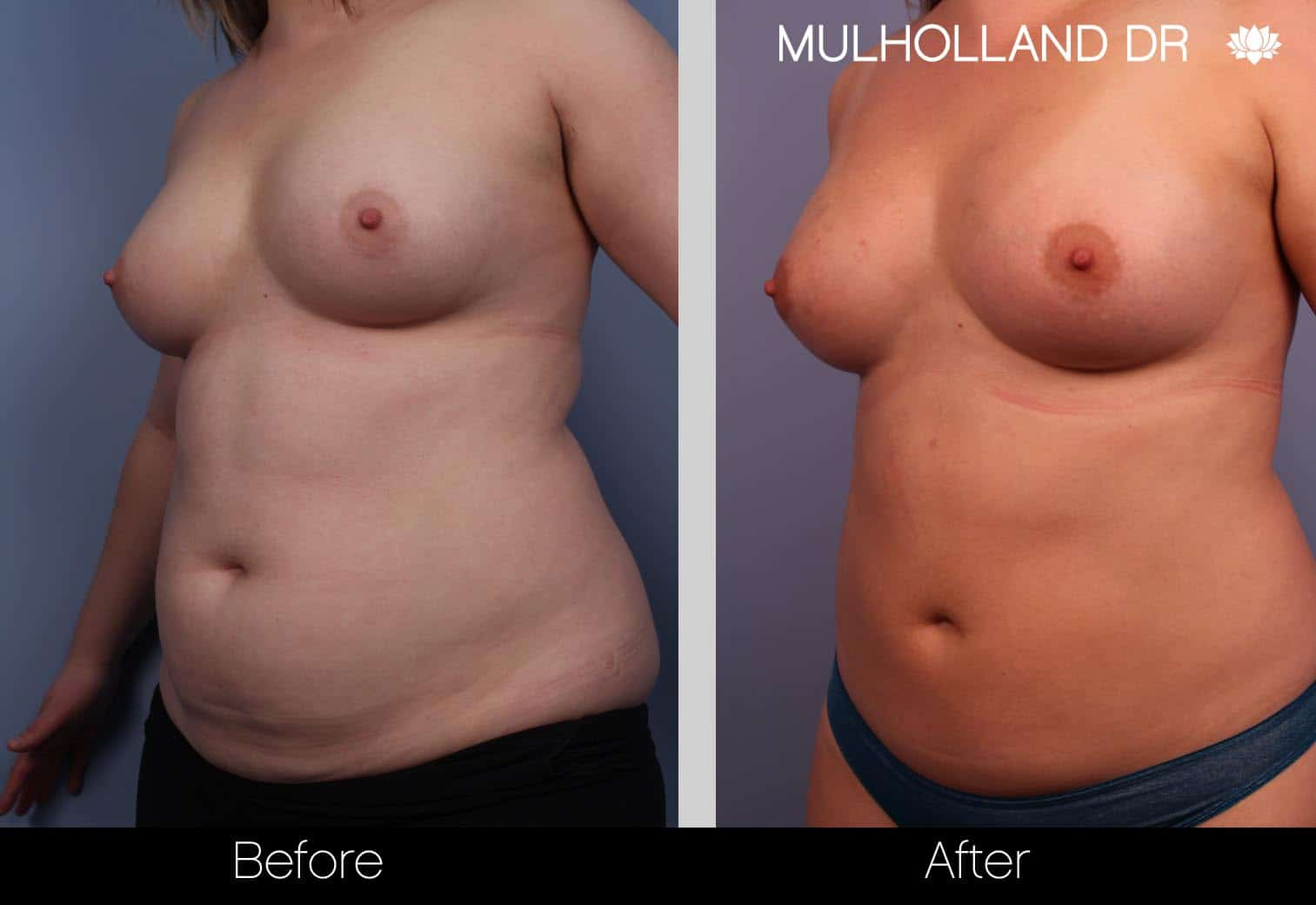 Fat Grafting Breast Augmentation - Before and After Gallery – Photo 2