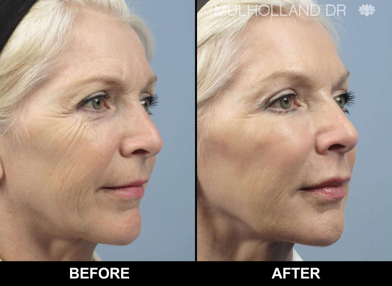 Fractional Erbium Laser - Before and After Gallery – Photo 12