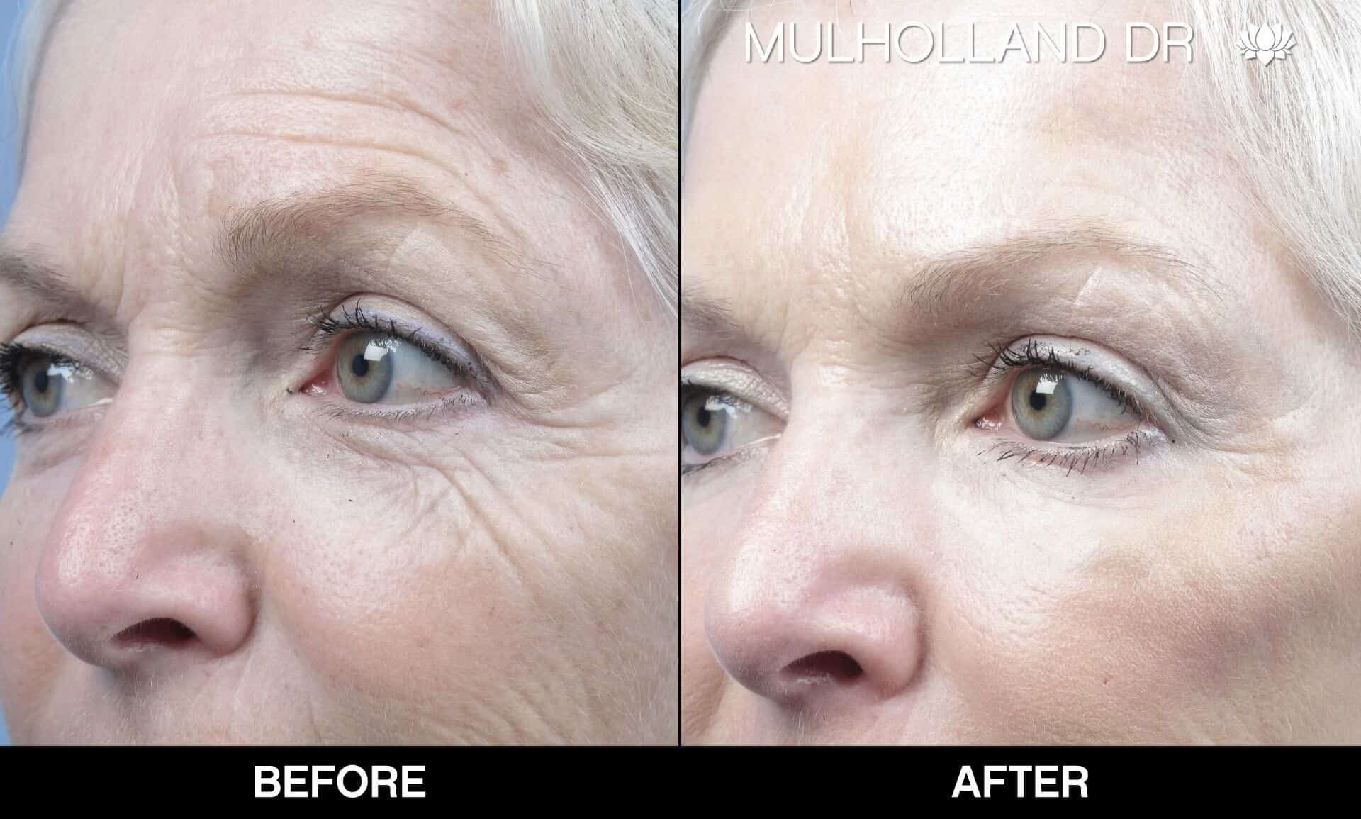 Microdermabrasion - Before and After Gallery – Photo 19
