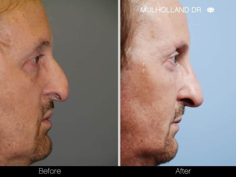 5 Minute Nose Job - Before and After Gallery – Photo 3