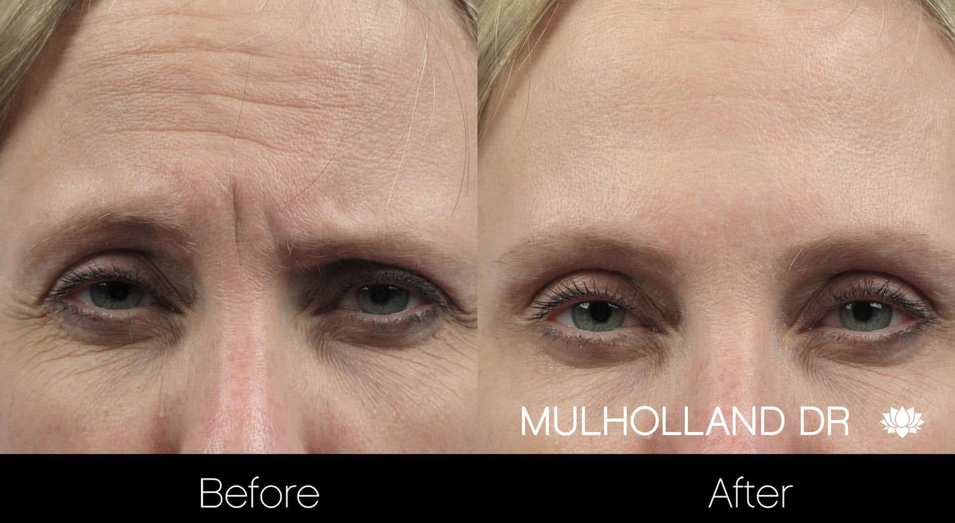 Botox Injectable - Before and After Gallery – Photo 3