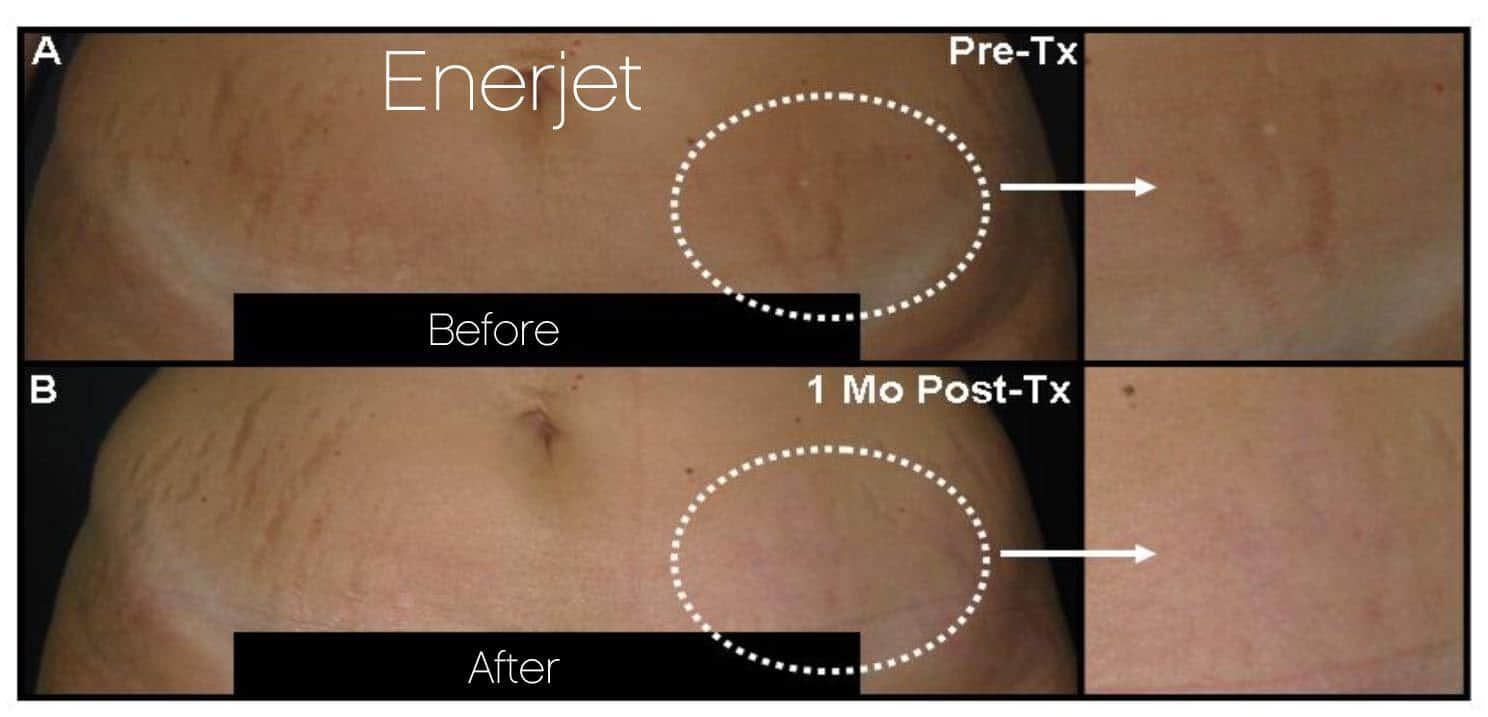 EnerJet Treatment - Before and After Gallery – Photo 3