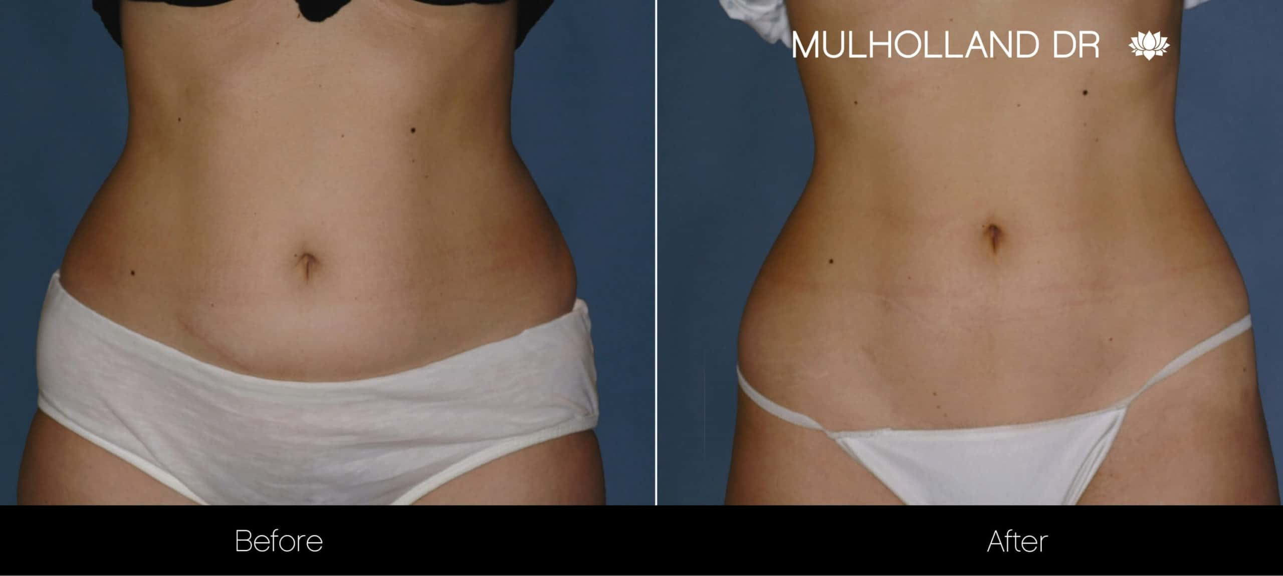 Non-Surgical Liposuction - Before and After Gallery – Photo 5