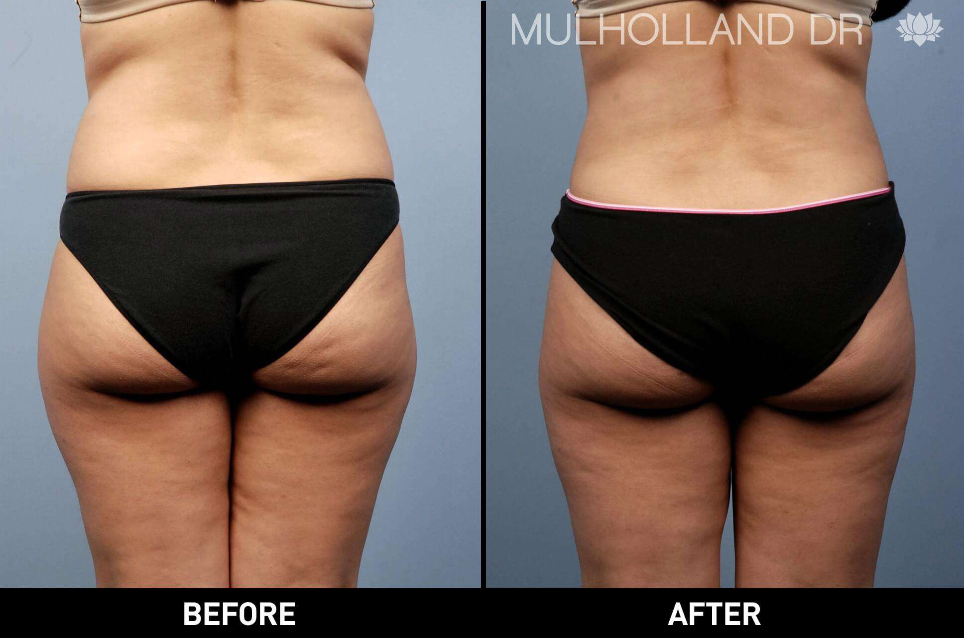 Vaser Lipo - Before and After Gallery – Photo 3