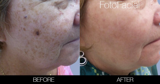 FotoFacial - Before and After Gallery – Photo 10