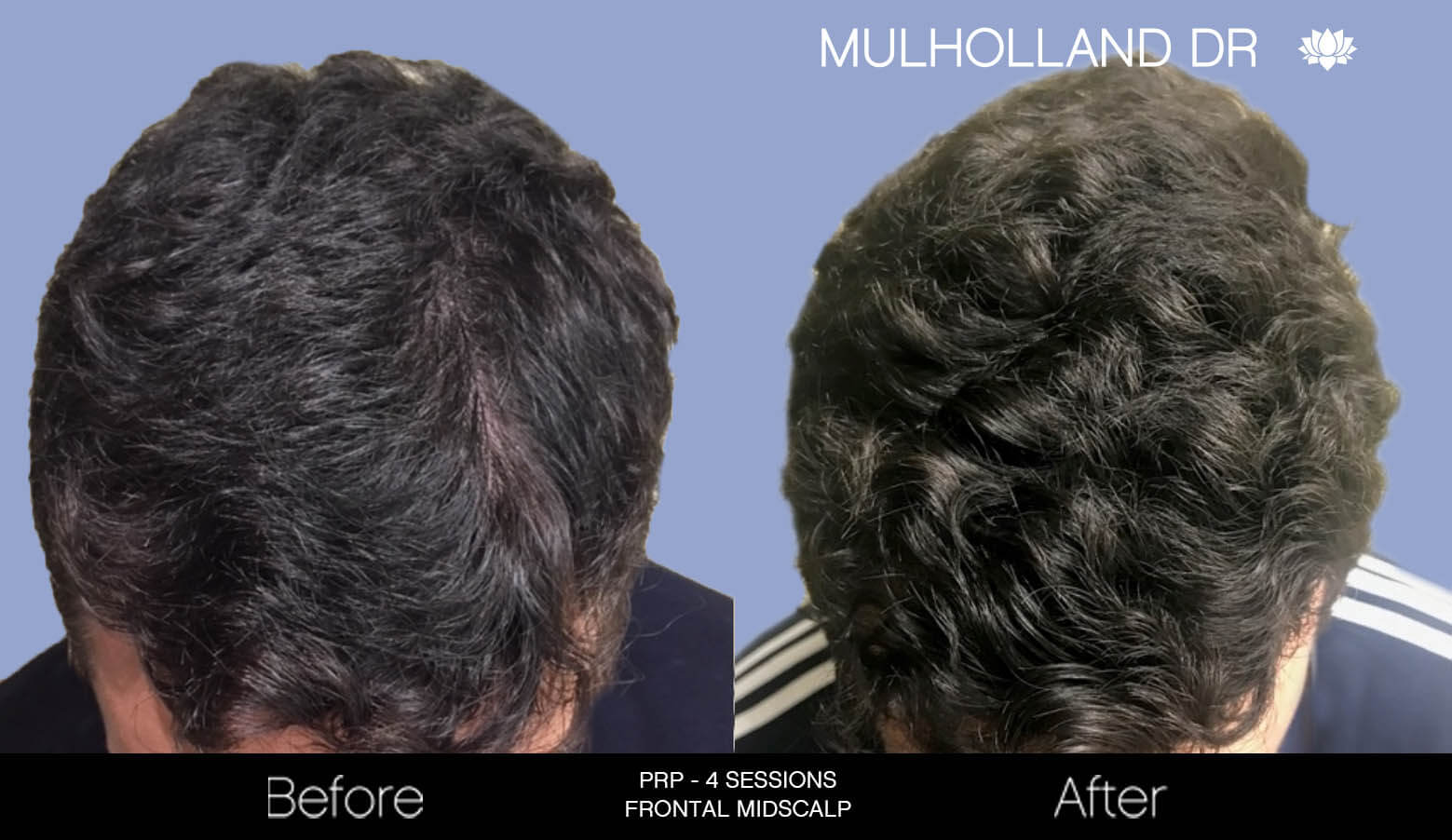 Non-Surgical Hair Restoration - Patient Before and After Gallery – Photo 3