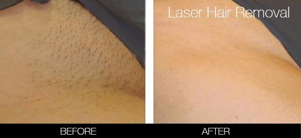 Bikini & Brazilian Laser Hair Removal - Patient 4