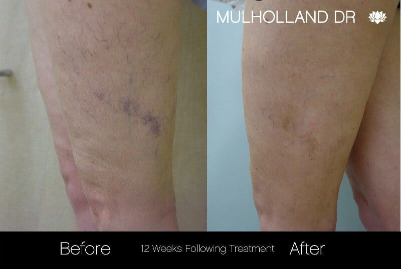 Leg Vein Reduction - Patient Before and After Gallery – Photo 3