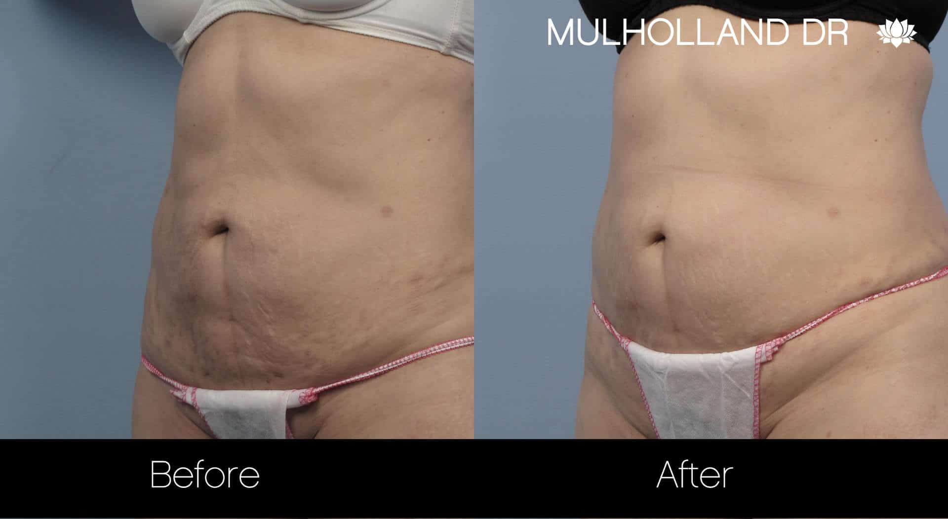 Laser Stretch Mark Removal - Patient Before and After Gallery – Photo 2