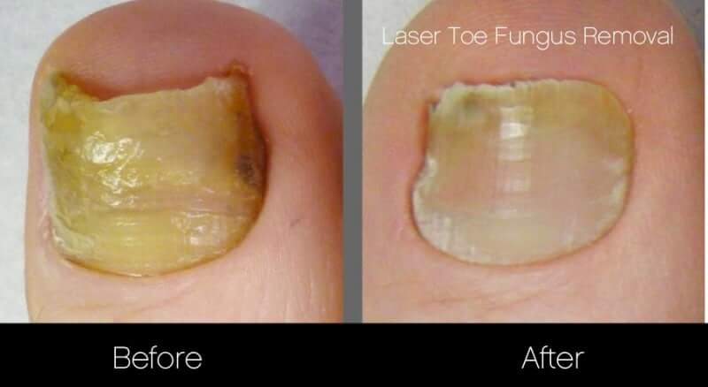 Toe Fungus Removal - Patient Before and After Gallery – Photo 3