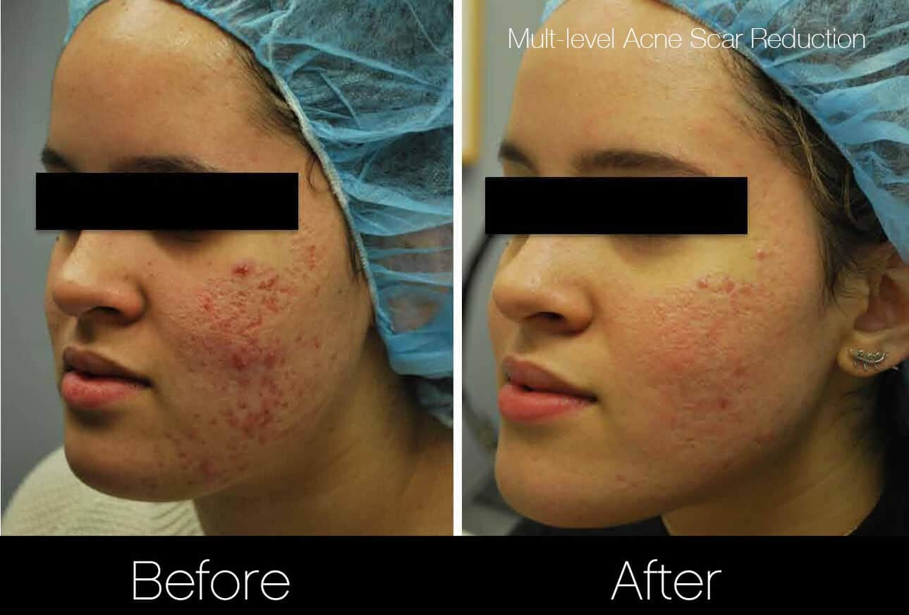 Acne Scar Treatments - Before and After Gallery – Photo 3