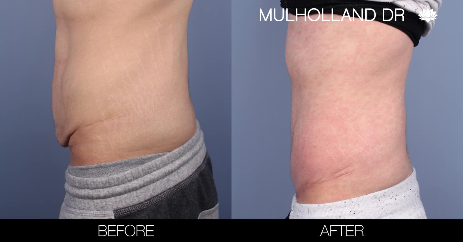 Male Tummy Tuck (Belt Lipectomy) - Before and After Gallery – Photo 3