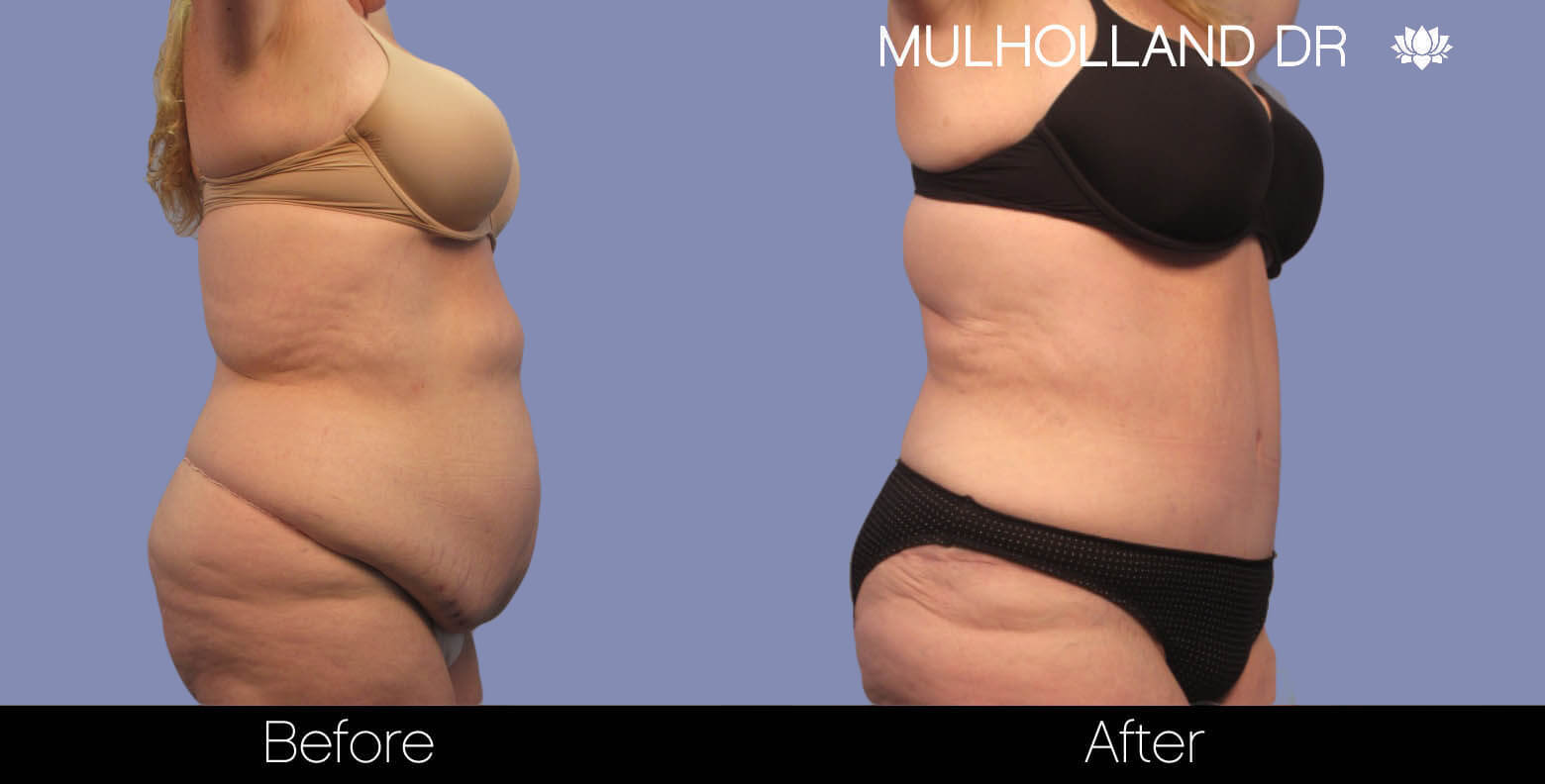 Tummy Tuck - Before and After Gallery – Photo 3