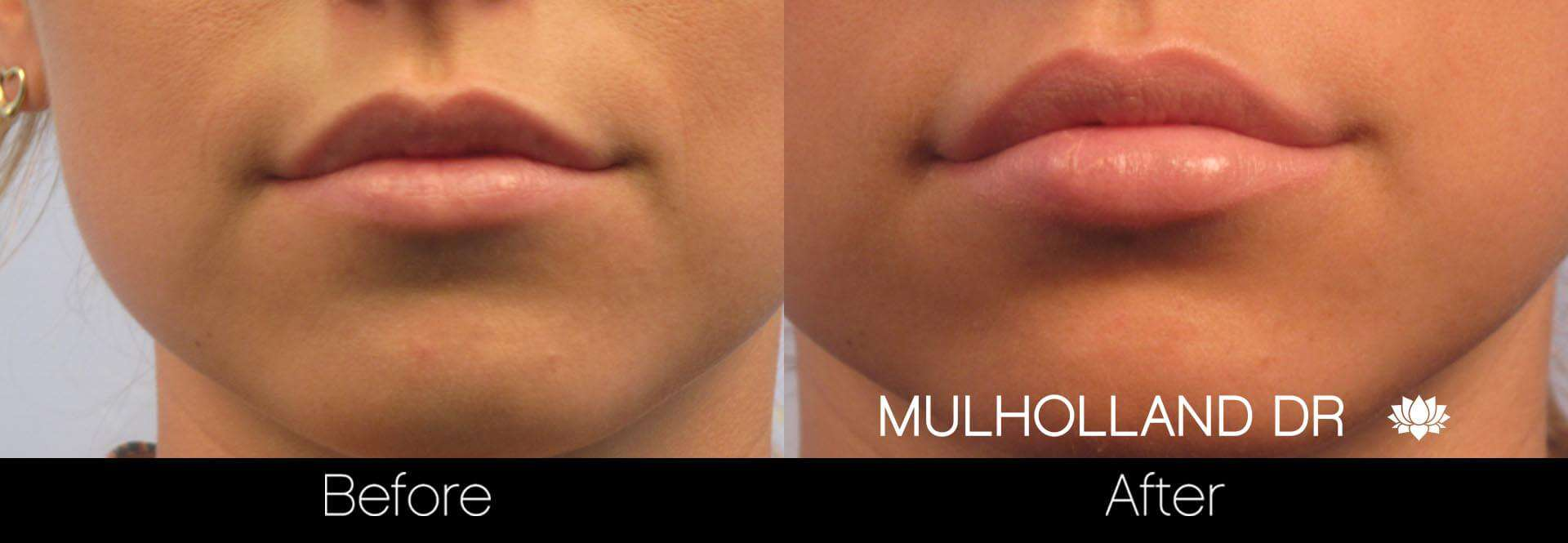 Lip Augmentation- Before and After Gallery – Photo 4