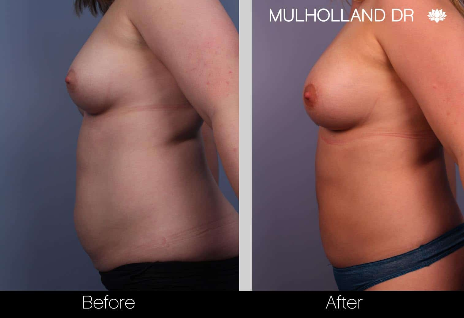 Fat Grafting Breast Augmentation - Before and After Gallery – Photo 3