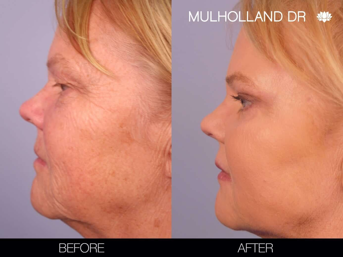 Laser Skin Resurfacing - Before and After Gallery – Photo 2
