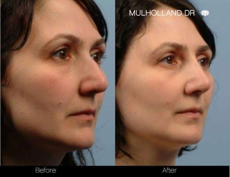 5 Minute Nose Job - Patient 4