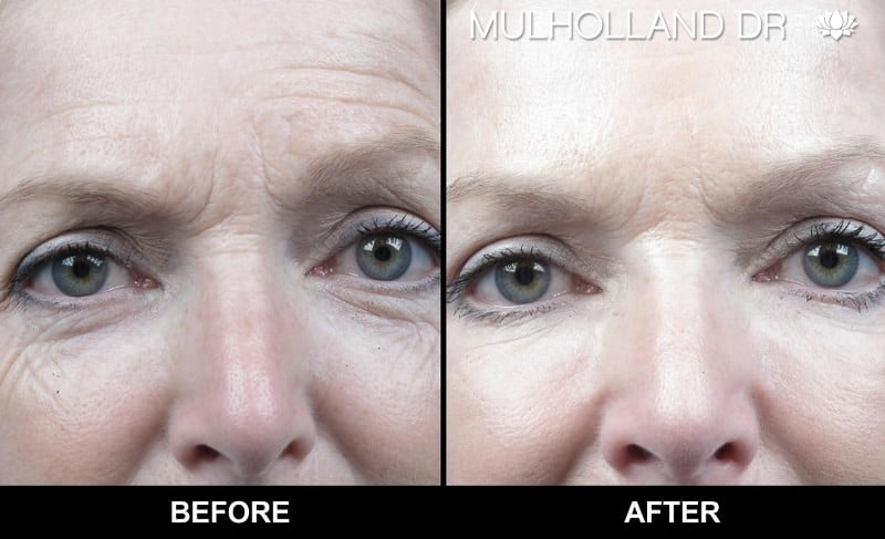 Botox Injectable - Before and After Gallery – Photo 4