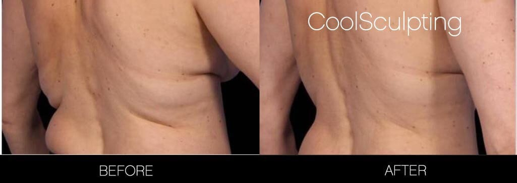 CoolSculpting - Before and After Gallery – Photo 4