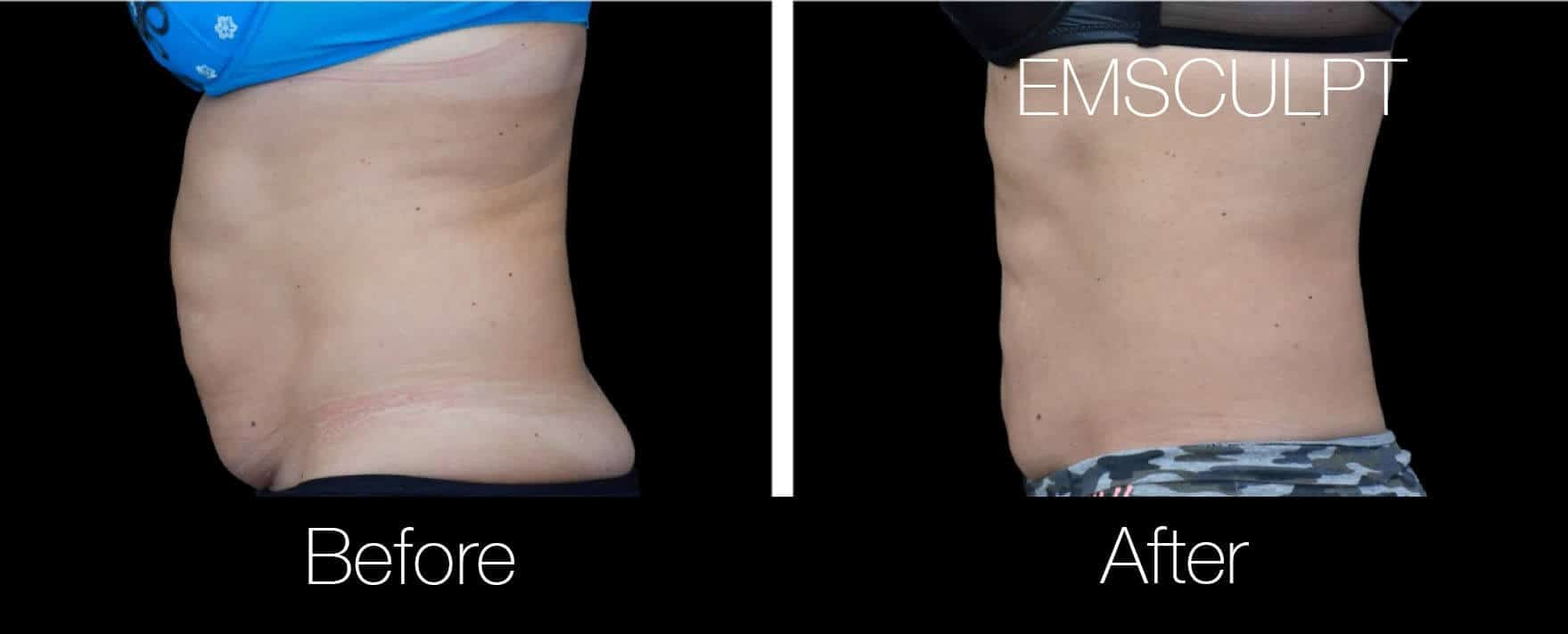 Emsculpt - Before and After Gallery – Photo 1