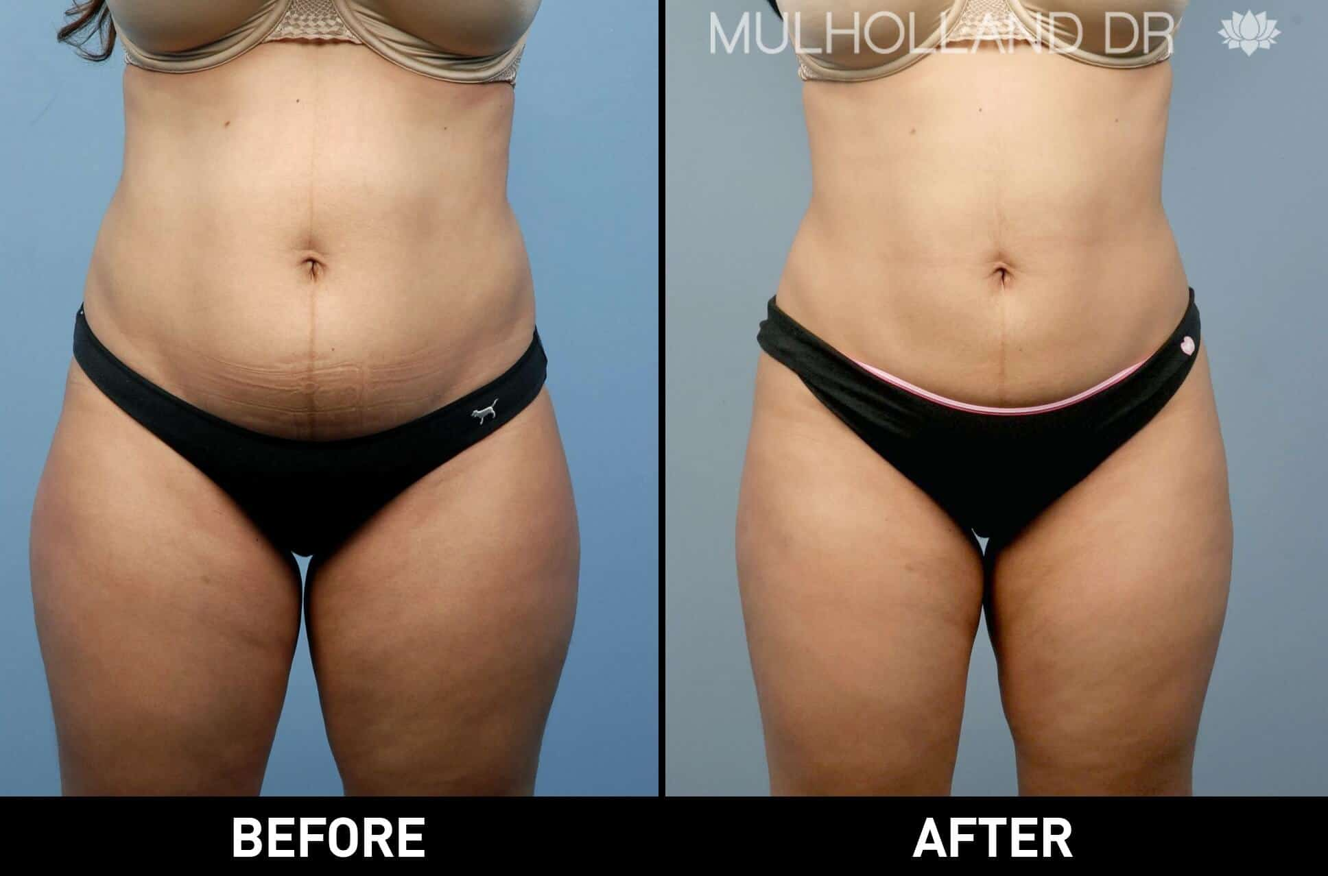 Vaser Lipo - Before and After Gallery – Photo 4