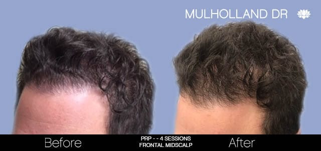 Non-Surgical Hair Restoration - Patient Before and After Gallery – Photo 4