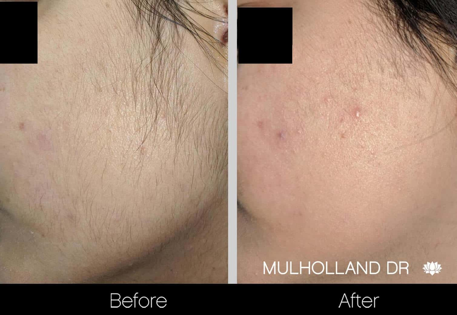 Laser Hair Removal - Patient Before and After Gallery – Photo 4