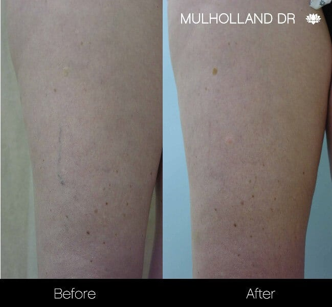 Leg Vein Reduction - Patient 4